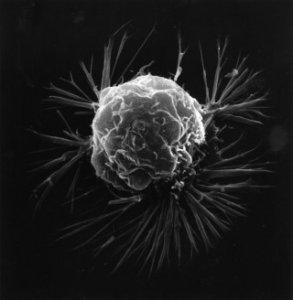 Rosszindulatú daganatok fajtái