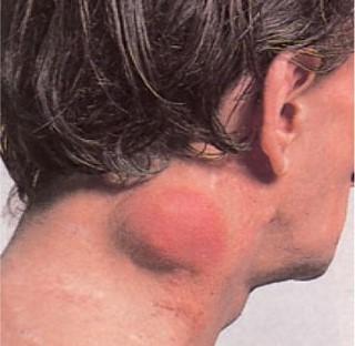 amely a hodgkin-limfóma rák