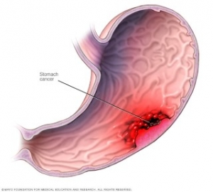 A gyomorrák jelek és tünetei