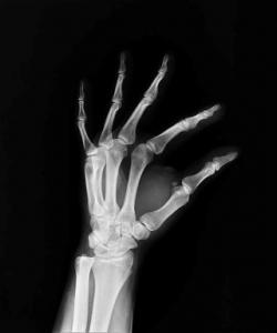 A csontrák jelei és tünetei