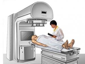 sugárterápiás gép