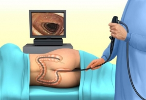 vastagbélvizsgálat kolonoszkópiával