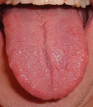 A nyelvem szokott lepedékes lenni
