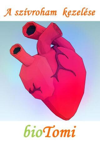 A szívroham kezelése