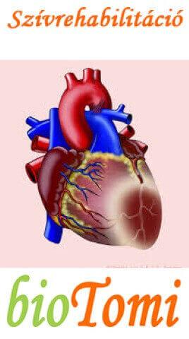 Szívrehabilitáció
