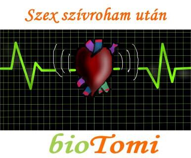 Szex szívroham után